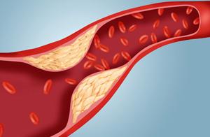 didelis cholesterolio kiekis ir hipertenzija hipertenzija nuo to, kas gali būti